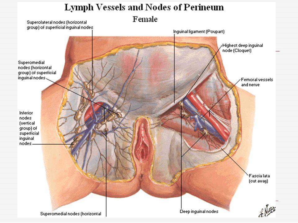 hydrocele hernia adults