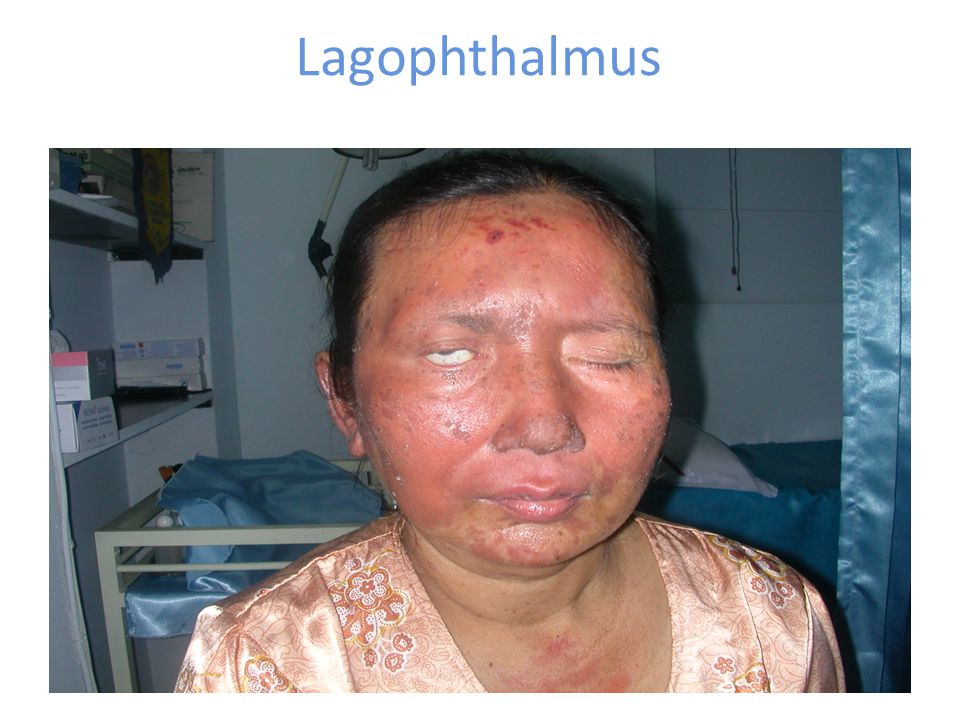 Lagophthalmus