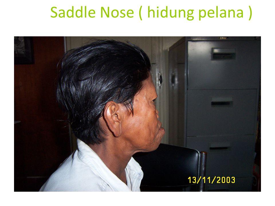 Saddle Nose ( hidung pelana )
