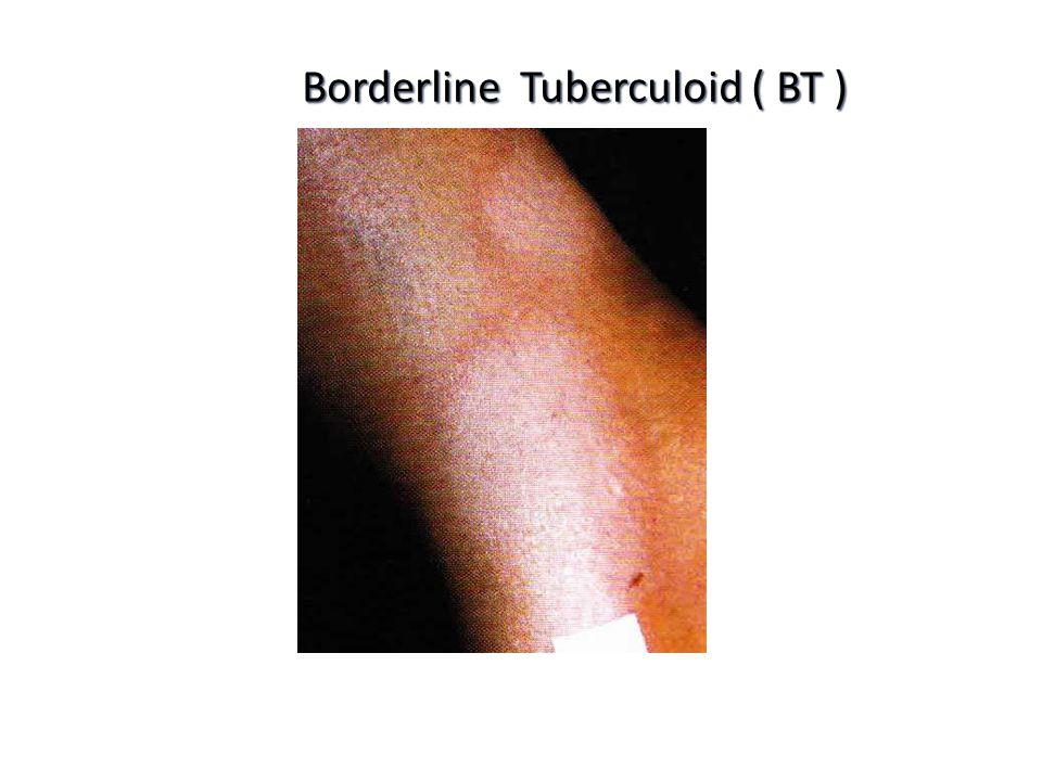 Borderline Tuberculoid ( BT )