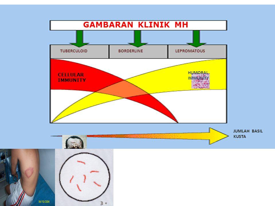 GAMBARAN KLINIK MH TUBERCULOID BORDERLINE LEPROMATOUS CELLULAR IMMUNITY HUMORAL IMMUNITY JUMLAH BASIL KUSTA
