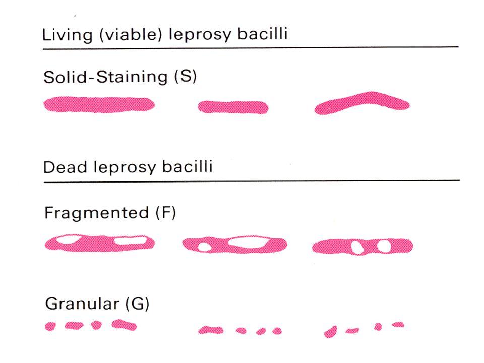 PENULARAN 1.Mukosa nasal (droplet infection) 2.Inokulasi pada kulit yang tidak utuh (suhu dingin) Imunitas, kemampuan hidup&waktu regenerasi bakteri