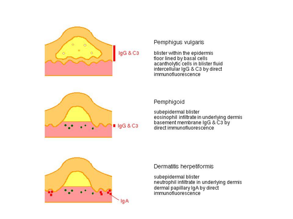 HISTOPATOLOGI Kelainan pada celah dermal-epidermal Bula sub epidermal Sel infiltrat utama: eosinofil IMUNOLOGI IF: endapan IgG dan C3 seperti pita pada BMZ