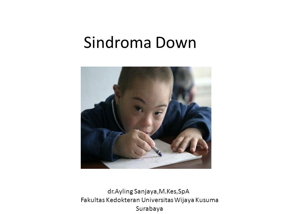 Sindroma Down dr.Ayling Sanjaya,M.Kes,SpA Fakultas Kedokteran Universitas Wijaya Kusuma Surabaya