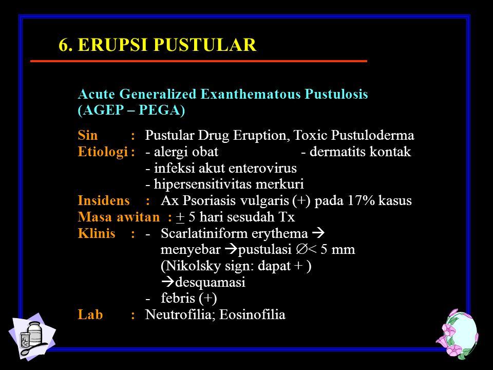 Acute Generalized Exanthematous Pustulosis (AGEP – PEGA) Sin: Pustular Drug Eruption, Toxic Pustuloderma Etiologi: - alergi obat - dermatits kontak - infeksi akut enterovirus - hipersensitivitas merkuri Insidens: Ax Psoriasis vulgaris (+) pada 17% kasus Masa awitan : + 5 hari sesudah Tx Klinis:- Scarlatiniform erythema  menyebar  pustulasi  < 5 mm (Nikolsky sign: dapat + )  desquamasi - febris (+) Lab: Neutrofilia; Eosinofilia 6.