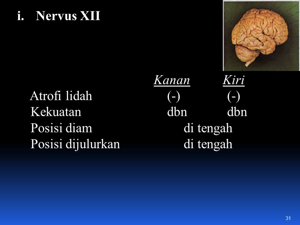 i.Nervus XII Kanan Kiri Atrofi lidah(-)(-) Kekuatan dbndbn Posisi diam di tengah Posisi dijulurkan di tengah 31