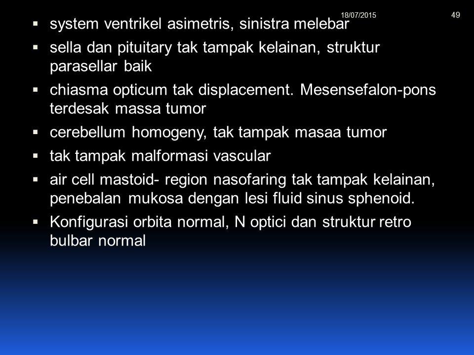  system ventrikel asimetris, sinistra melebar  sella dan pituitary tak tampak kelainan, struktur parasellar baik  chiasma opticum tak displacement.