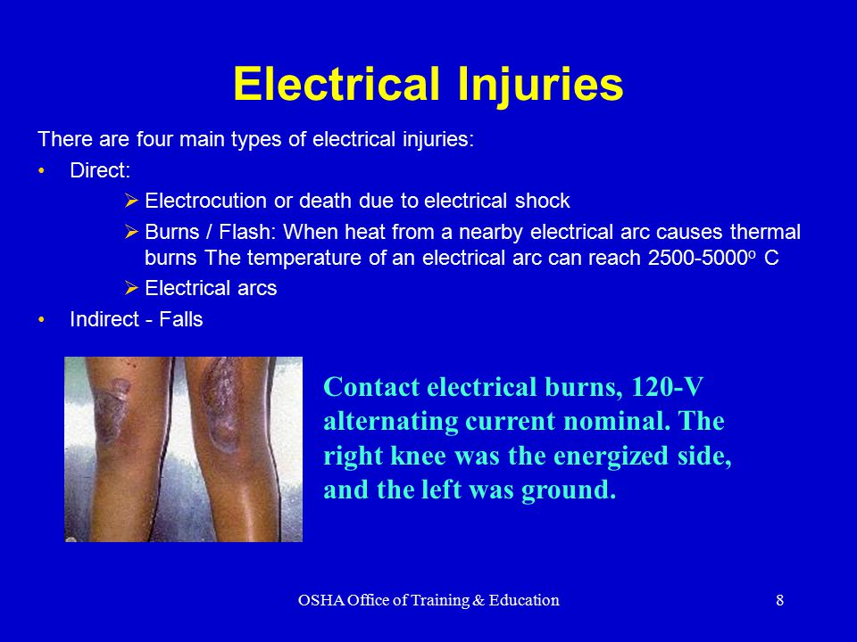 8 Electrical Injuries There are four main types of electrical injuries: Direct:  Electrocution or death due to electrical shock  Burns / Flash: When heat from a nearby electrical arc causes thermal burns The temperature of an electrical arc can reach 2500-5000 o C  Electrical arcs Indirect - Falls Contact electrical burns, 120-V alternating current nominal.