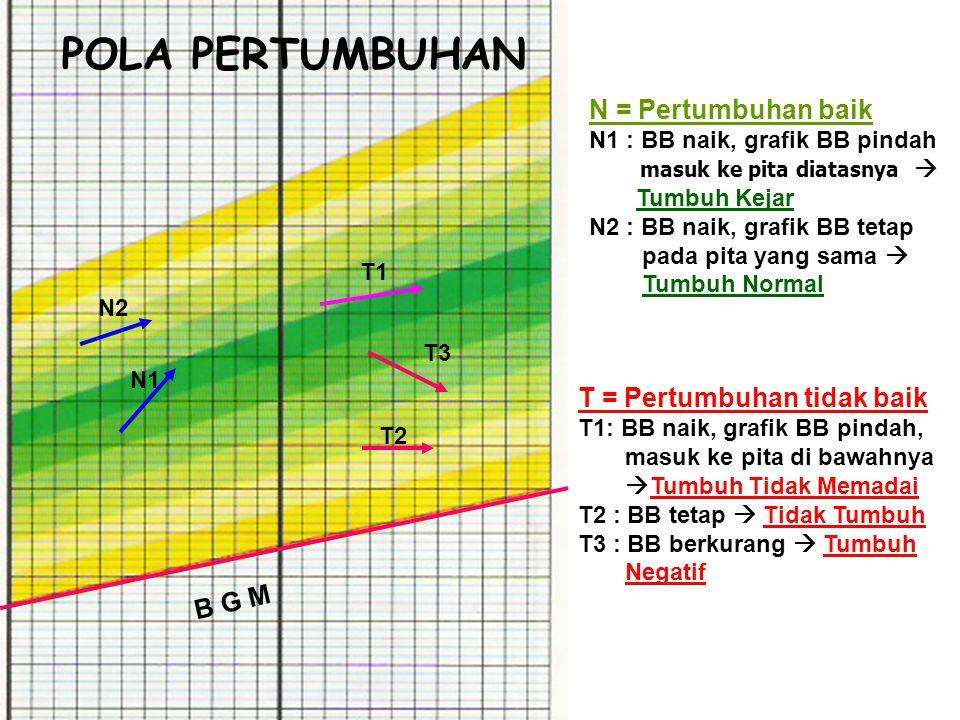 N2 N1 T1 T3 T2 B G M N = Pertumbuhan baik N1 : BB naik, grafik BB pindah masuk ke pita diatasnya  Tumbuh Kejar N2 : BB naik, grafik BB tetap pada pita yang sama  Tumbuh Normal T = Pertumbuhan tidak baik T1: BB naik, grafik BB pindah, masuk ke pita di bawahnya  Tumbuh Tidak Memadai T2 : BB tetap  Tidak Tumbuh T3 : BB berkurang  Tumbuh Negatif POLA PERTUMBUHAN
