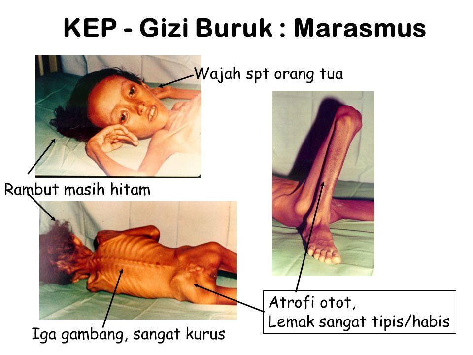 KEP - Gizi Buruk : Marasmus Wajah spt orang tua Rambut masih hitam Iga gambang, sangat kurus Atrofi otot, Lemak sangat tipis/habis
