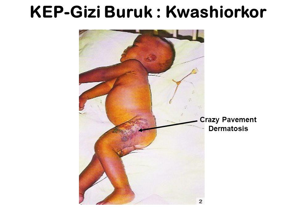 Gizi buruk : Kwashiorkor Rambut jarang Wajah Edema 'Puffy'