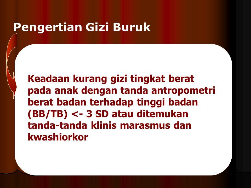 Pengertian Gizi Buruk Keadaan kurang gizi tingkat berat pada anak dengan tanda antropometri berat badan terhadap tinggi badan (BB/TB) <- 3 SD atau dit