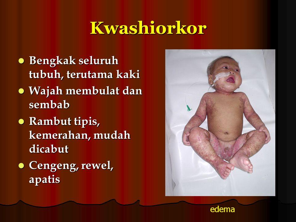 Kwashiorkor Bengkak seluruh tubuh, terutama kaki Bengkak seluruh tubuh, terutama kaki Wajah membulat dan sembab Wajah membulat dan sembab Rambut tipis