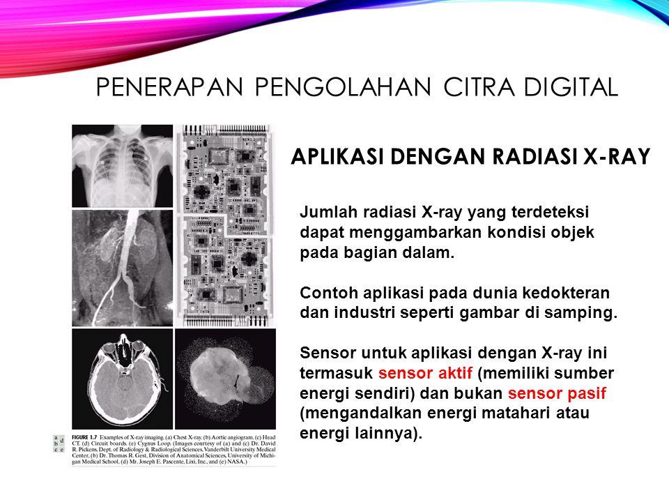 PENERAPAN PENGOLAHAN CITRA DIGITAL Jumlah radiasi X-ray yang terdeteksi dapat menggambarkan kondisi objek pada bagian dalam. Contoh aplikasi pada duni