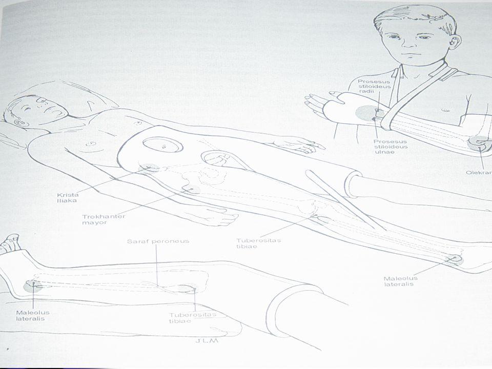 Bahan-bahan Gips Plaster  Gulungan crinoline di tambah serbuk kalsium sulfat anhidrus (kristal gipsum)  basah terjadi kristalisasi dan mengeluarkan panas (eksotermis) Panas  menganggu kenyamanan Gips ditempat terbuka  15 menit dingin Gips lembab membentuk cekungan sesuai kebutuhan  mengering 24-72 jam
