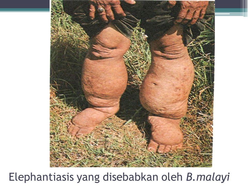 Elephantiasis yang disebabkan oleh B.malayi