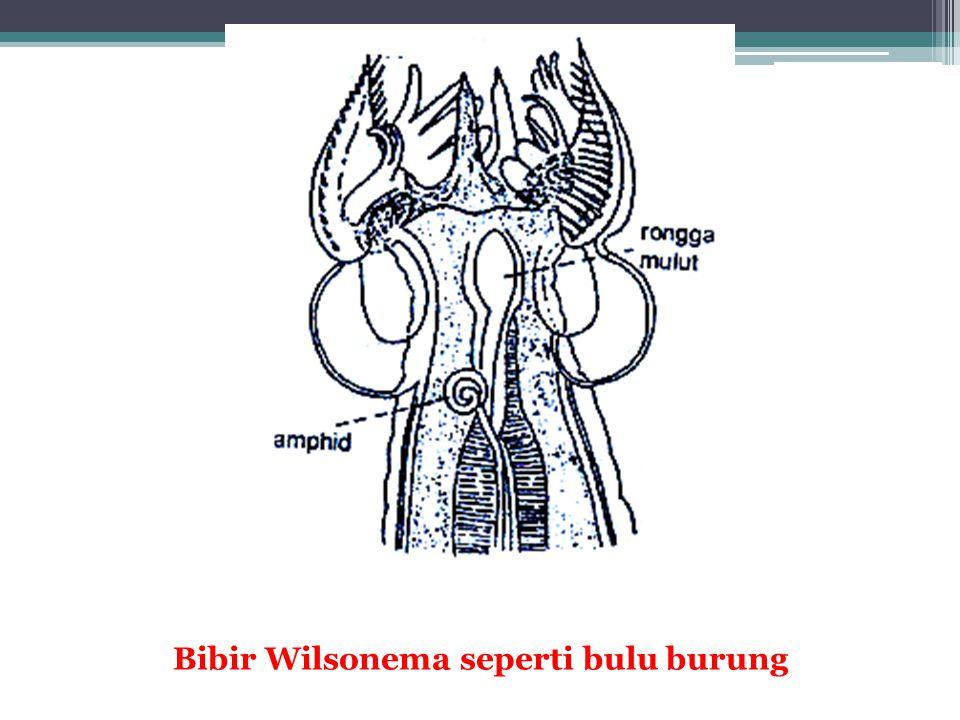 Daur hidup Brugia malayi/B.timori