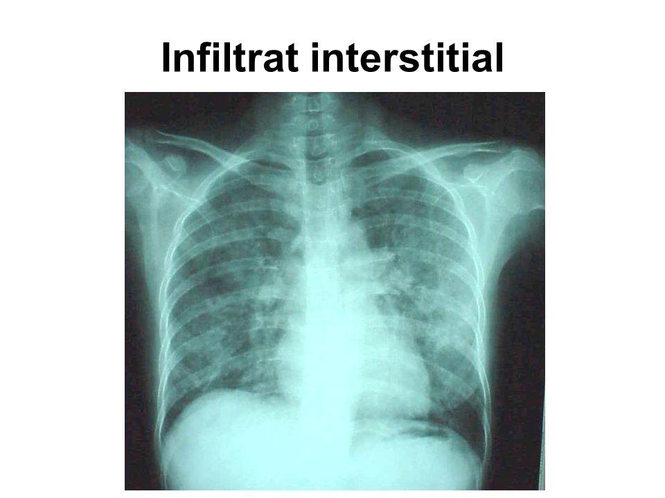 Hasil X-foto dada pasien TB dengan infeksi HIV HIV awal HIV lanjut (severe immuno-compromise)