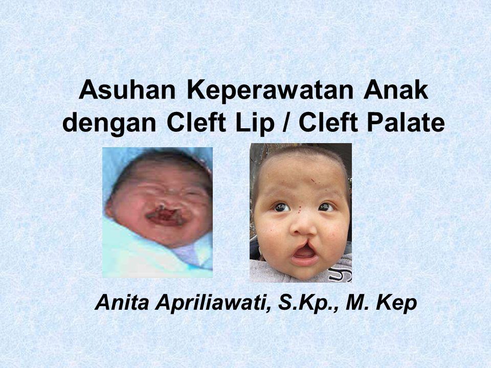 Asuhan Keperawatan Anak dengan Cleft Lip / Cleft Palate Anita Apriliawati, S.Kp., M. Kep