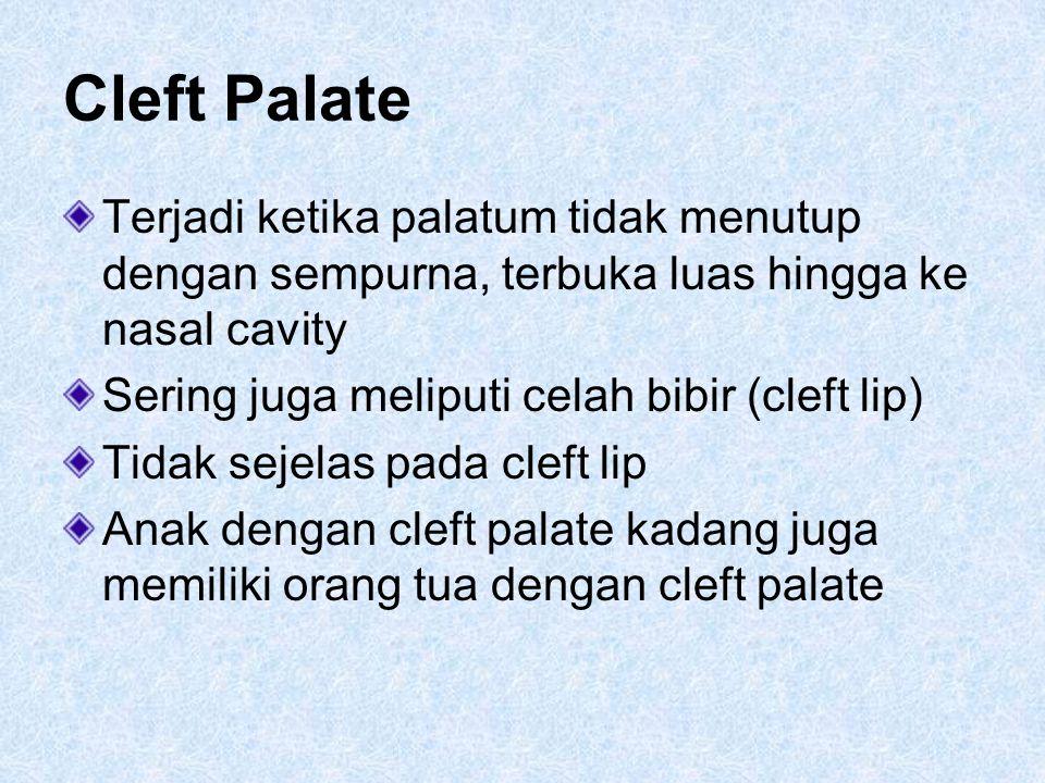 Cleft Palate Terjadi ketika palatum tidak menutup dengan sempurna, terbuka luas hingga ke nasal cavity Sering juga meliputi celah bibir (cleft lip) Ti