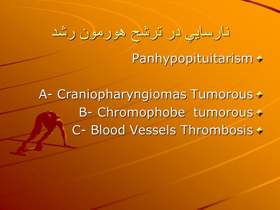 نارسايي در ترشح هورمون رشد Panhypopituitarism A- Craniopharyngiomas Tumorous B- Chromophobe tumorous C- Blood Vessels Thrombosis