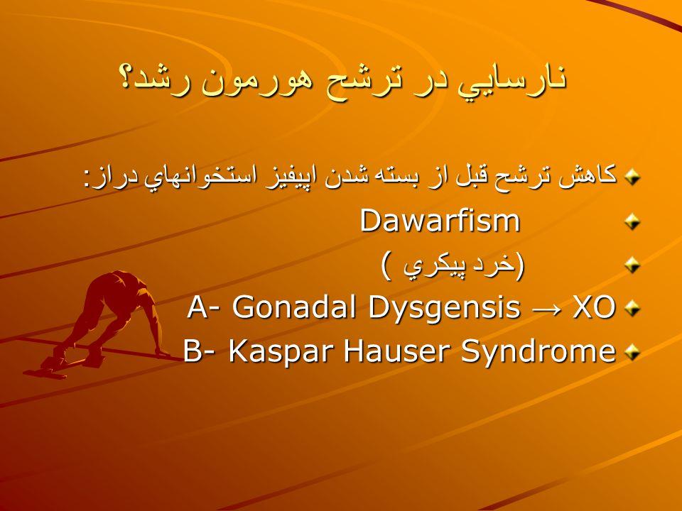 نارسايي در ترشح هورمون رشد؟ كاهش ترشح قبل از بسته شدن اپيفيز استخوانهاي دراز : Dawarfism ( خرد پيكري ( ( خرد پيكري ( A- Gonadal Dysgensis → XO B- Kaspar Hauser Syndrome
