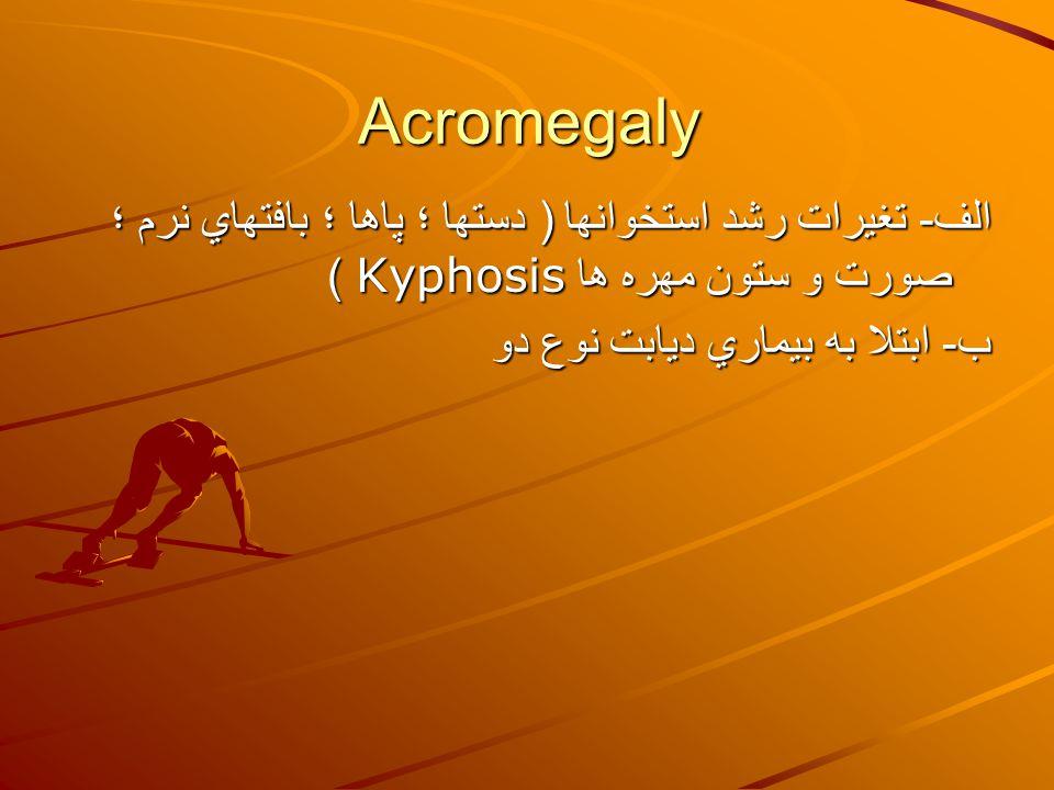 Acromegaly الف - تغيرات رشد استخوانها ( دستها ؛ پاها ؛ بافتهاي نرم ؛ صورت و ستون مهره ها Kyphosis ) ب - ابتلا به بيماري ديابت نوع دو