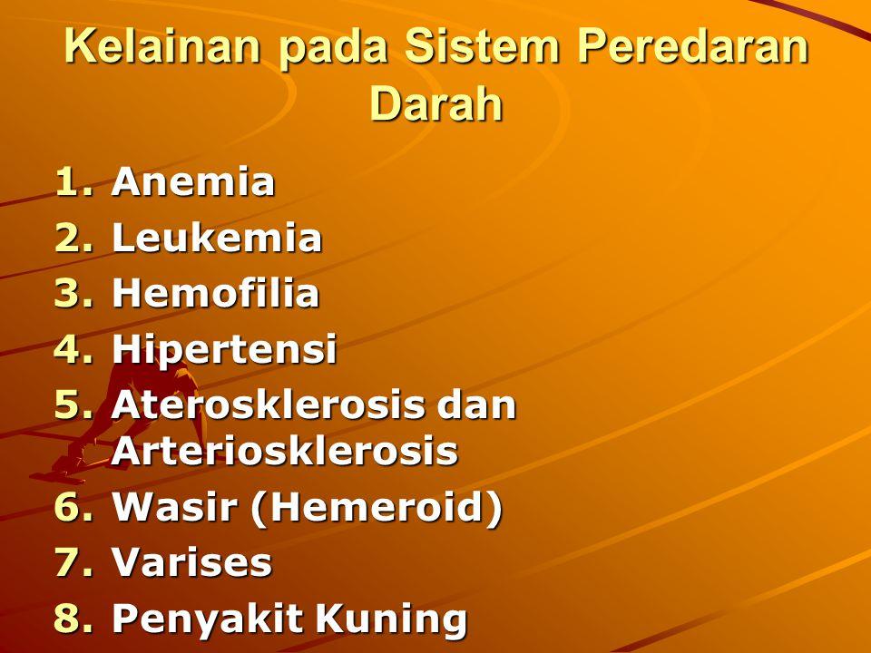 Kelainan pada Sistem Peredaran Darah 1.Anemia 2.Leukemia 3.Hemofilia 4.Hipertensi 5.Aterosklerosis dan Arteriosklerosis 6.Wasir (Hemeroid) 7.Varises 8.Penyakit Kuning