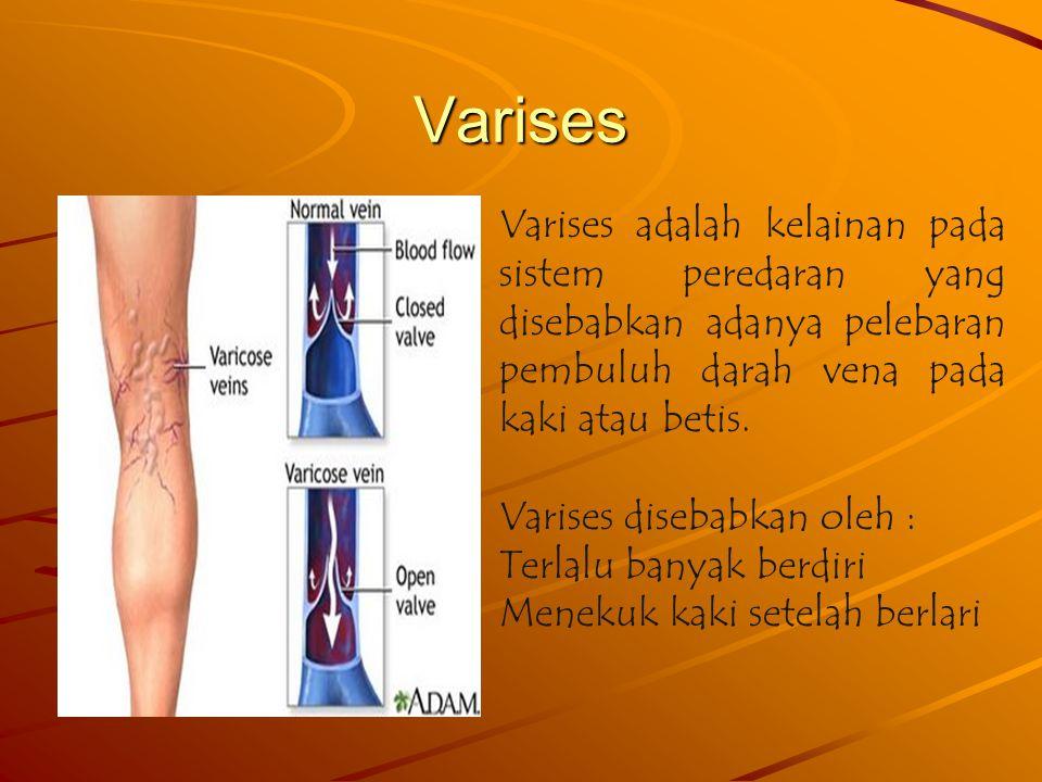 Varises Varises adalah kelainan pada sistem peredaran yang disebabkan adanya pelebaran pembuluh darah vena pada kaki atau betis.