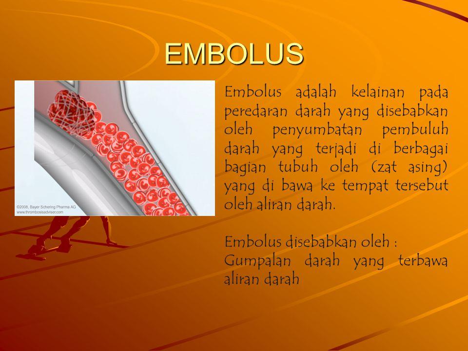 EMBOLUS Embolus adalah kelainan pada peredaran darah yang disebabkan oleh penyumbatan pembuluh darah yang terjadi di berbagai bagian tubuh oleh (zat asing) yang di bawa ke tempat tersebut oleh aliran darah.