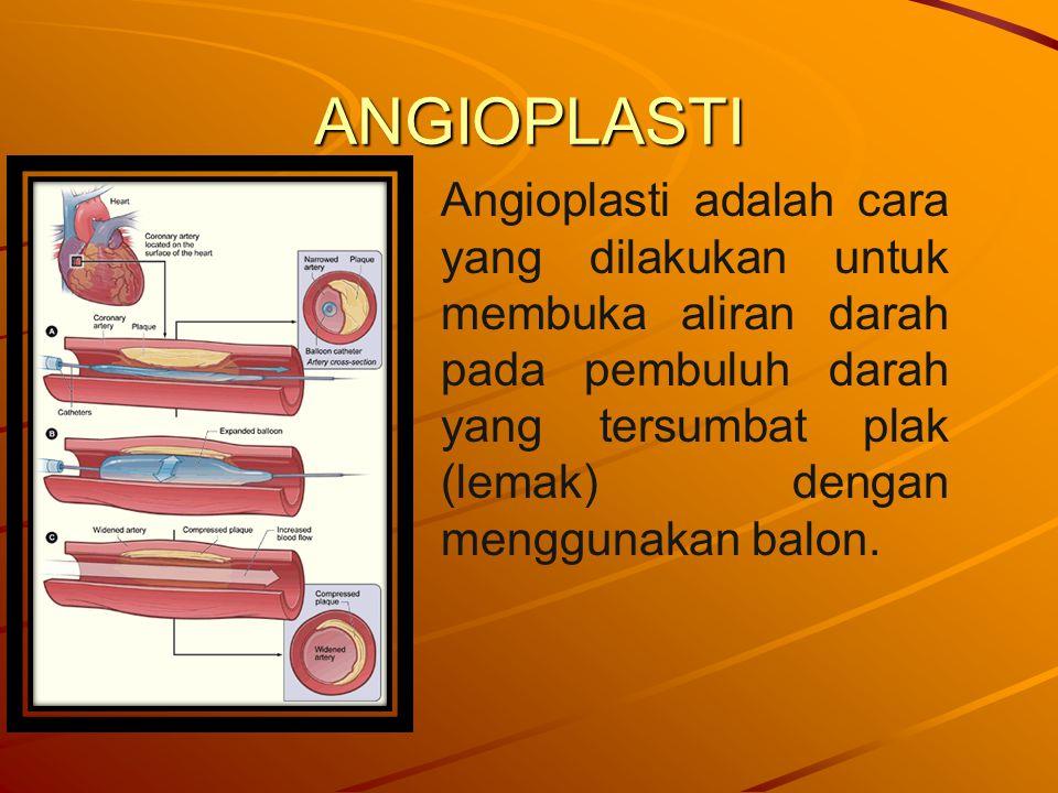 ANGIOPLASTI Angioplasti adalah cara yang dilakukan untuk membuka aliran darah pada pembuluh darah yang tersumbat plak (lemak) dengan menggunakan balon.