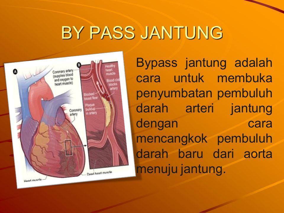 BY PASS JANTUNG Bypass jantung adalah cara untuk membuka penyumbatan pembuluh darah arteri jantung dengan cara mencangkok pembuluh darah baru dari aorta menuju jantung.