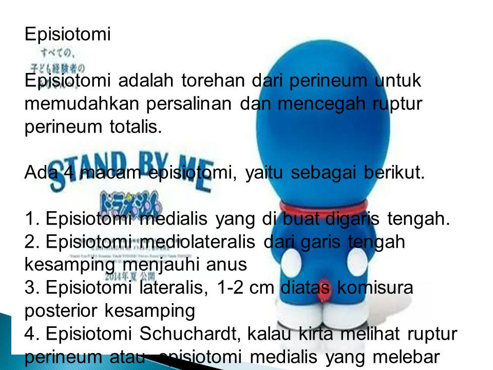 Episiotomi Episiotomi adalah torehan dari perineum untuk memudahkan persalinan dan mencegah ruptur perineum totalis. Ada 4 macam episiotomi, yaitu seb
