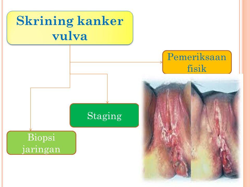 Skrining kanker vulva Biopsi jaringan Pemeriksaan fisik Staging