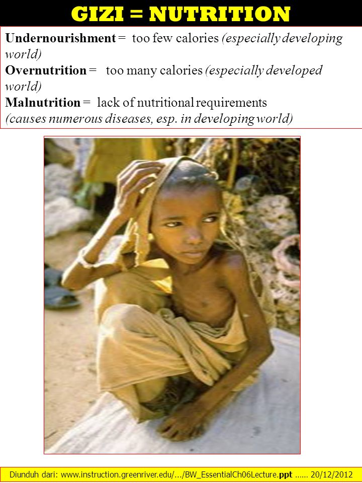 GIZI = NUTRITION Undernourishment = too few calories (especially developing world) Overnutrition = too many calories (especially developed world) Maln
