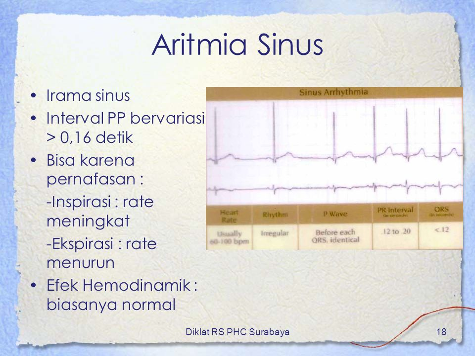Diklat RS PHC Surabaya18 Aritmia Sinus Irama sinus Interval PP bervariasi > 0,16 detik Bisa karena pernafasan : -Inspirasi : rate meningkat -Ekspirasi
