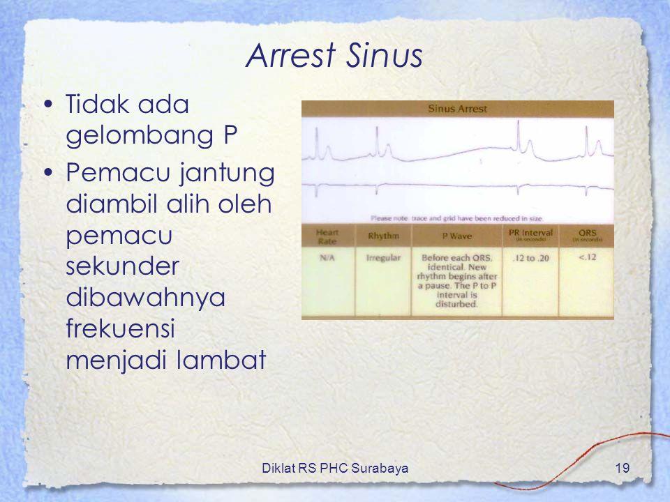 Diklat RS PHC Surabaya19 Arrest Sinus Tidak ada gelombang P Pemacu jantung diambil alih oleh pemacu sekunder dibawahnya frekuensi menjadi lambat
