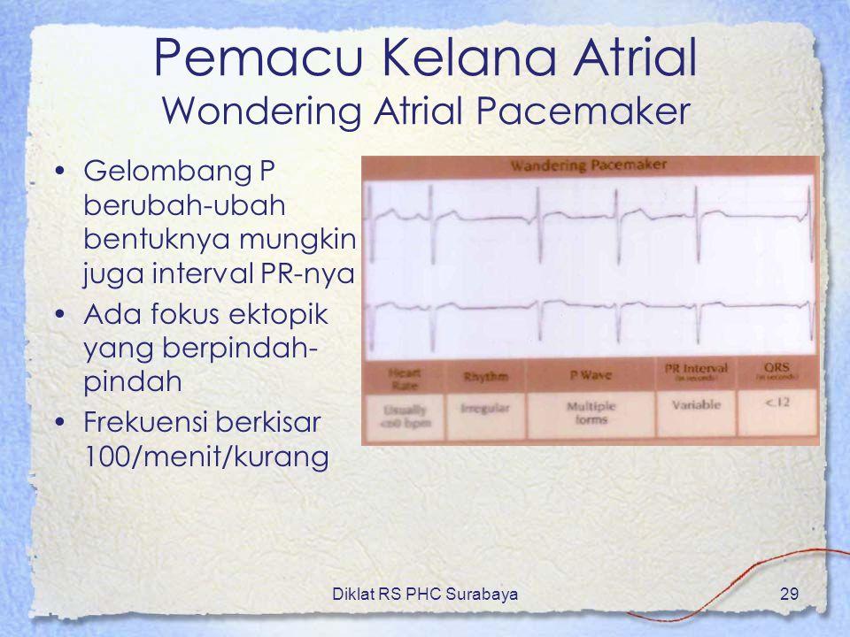 Diklat RS PHC Surabaya29 Pemacu Kelana Atrial Wondering Atrial Pacemaker Gelombang P berubah-ubah bentuknya mungkin juga interval PR-nya Ada fokus ekt