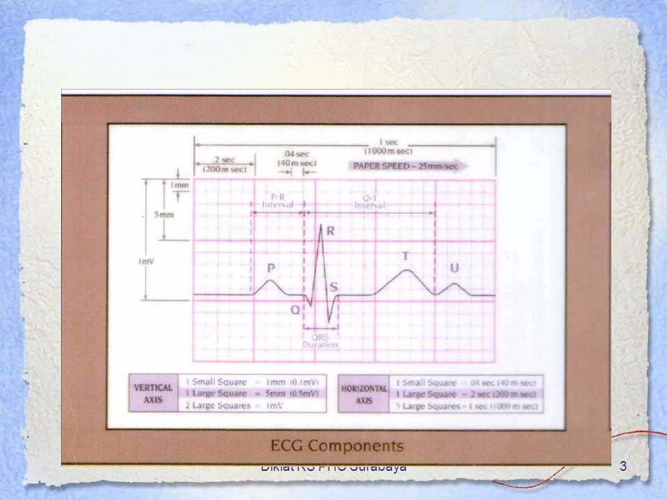 Diklat RS PHC Surabaya24 Atrial tachycardia,… P sering sukar dikenali (numpuk pd T) QRS sempit, kecuali ada konduksi aberans Interval PP dan RR teratur Efek hemodinamik sampai shock