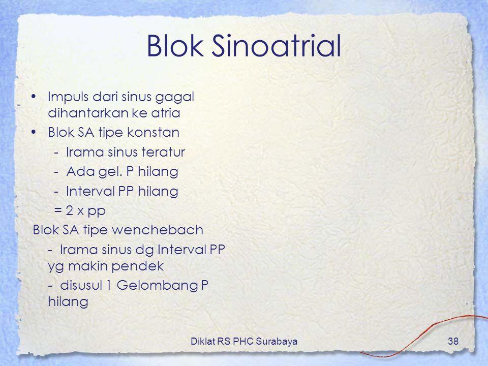 Diklat RS PHC Surabaya38 Blok Sinoatrial Impuls dari sinus gagal dihantarkan ke atria Blok SA tipe konstan - Irama sinus teratur - Ada gel. P hilang -