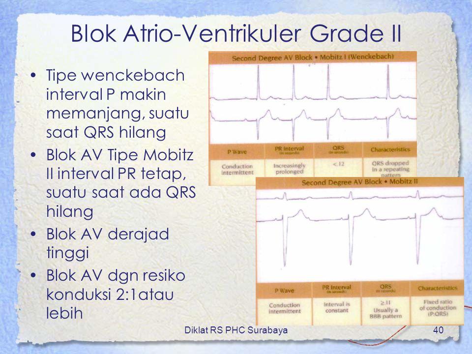Diklat RS PHC Surabaya40 Blok Atrio-Ventrikuler Grade II Tipe wenckebach interval P makin memanjang, suatu saat QRS hilang Blok AV Tipe Mobitz II inte
