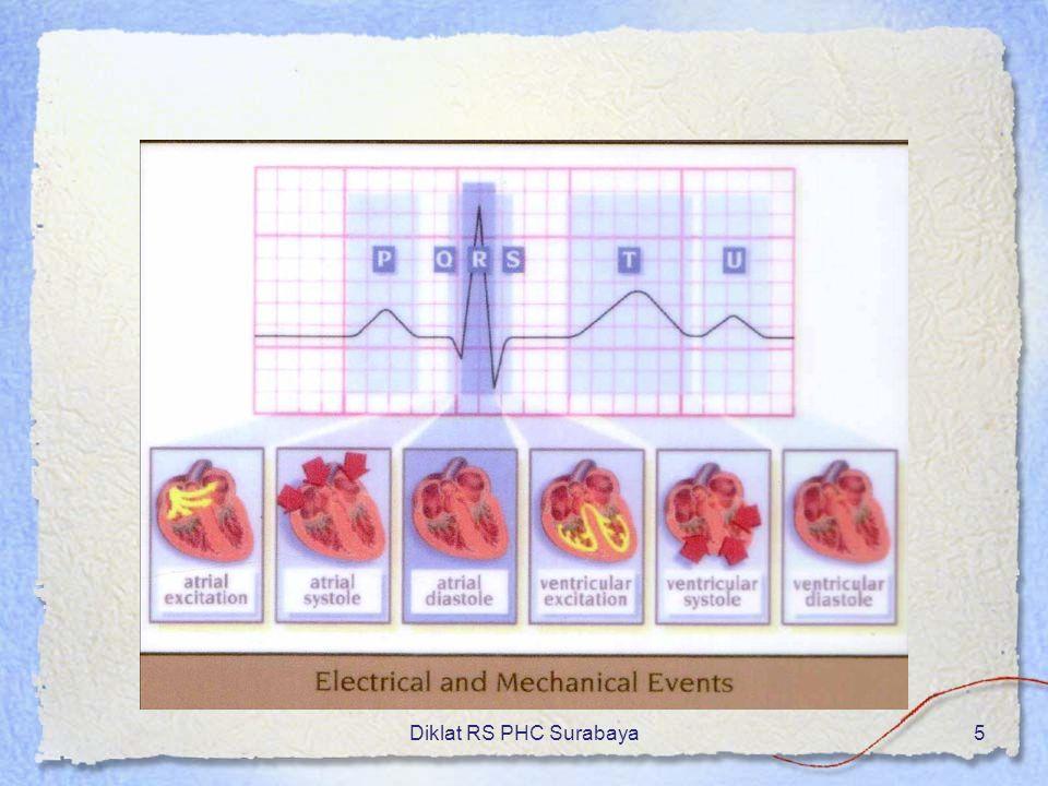 Diklat RS PHC Surabaya26 Biasanya ada konduksi 2 : 1(atrium 2x, ventri 1x) QRS biasanya sempit Efek hemodinamik: - Tergantung respons ventrikel - Rate ventrikel cepat: curah jantung turun - Rate ventrikel 60- 100/mnt: normal Atrial Flutter…