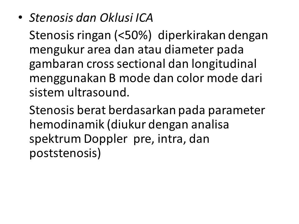 Stenosis dan Oklusi ICA Stenosis ringan (<50%) diperkirakan dengan mengukur area dan atau diameter pada gambaran cross sectional dan longitudinal meng