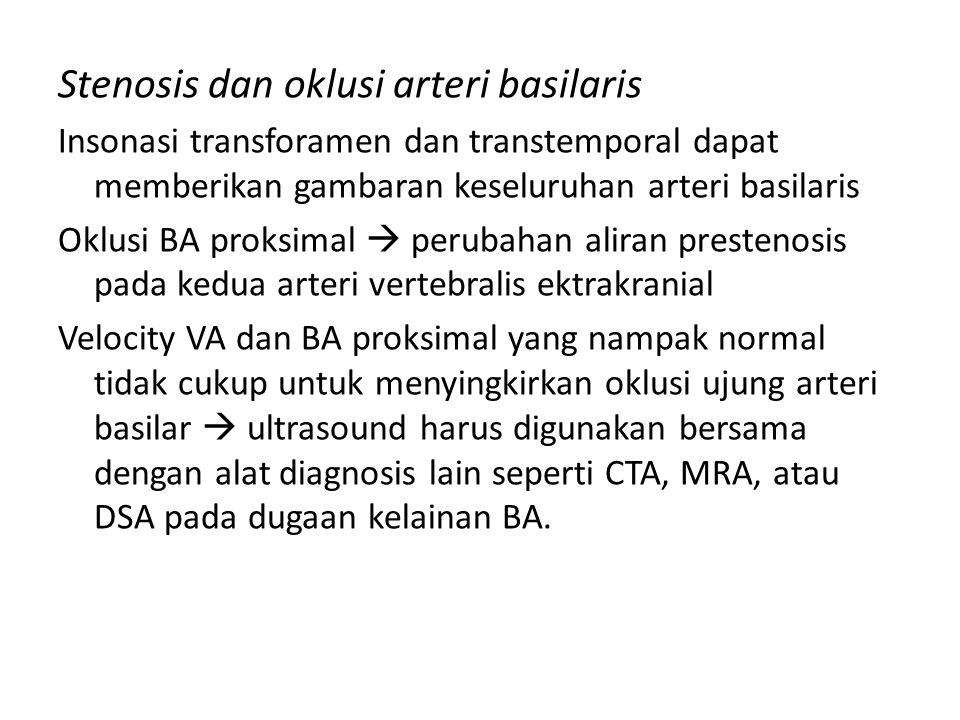 Stenosis dan oklusi arteri basilaris Insonasi transforamen dan transtemporal dapat memberikan gambaran keseluruhan arteri basilaris Oklusi BA proksima