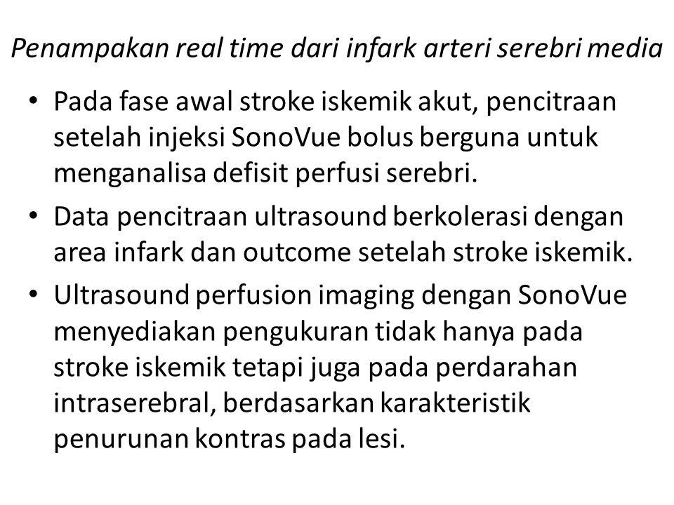 Penampakan real time dari infark arteri serebri media Pada fase awal stroke iskemik akut, pencitraan setelah injeksi SonoVue bolus berguna untuk menga