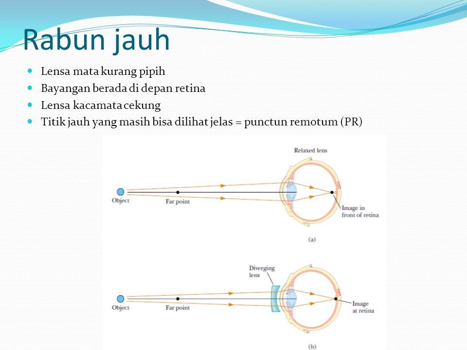 Rabun jauh Lensa mata kurang pipih Bayangan berada di depan retina Lensa kacamata cekung Titik jauh yang masih bisa dilihat jelas = punctun remotum (P