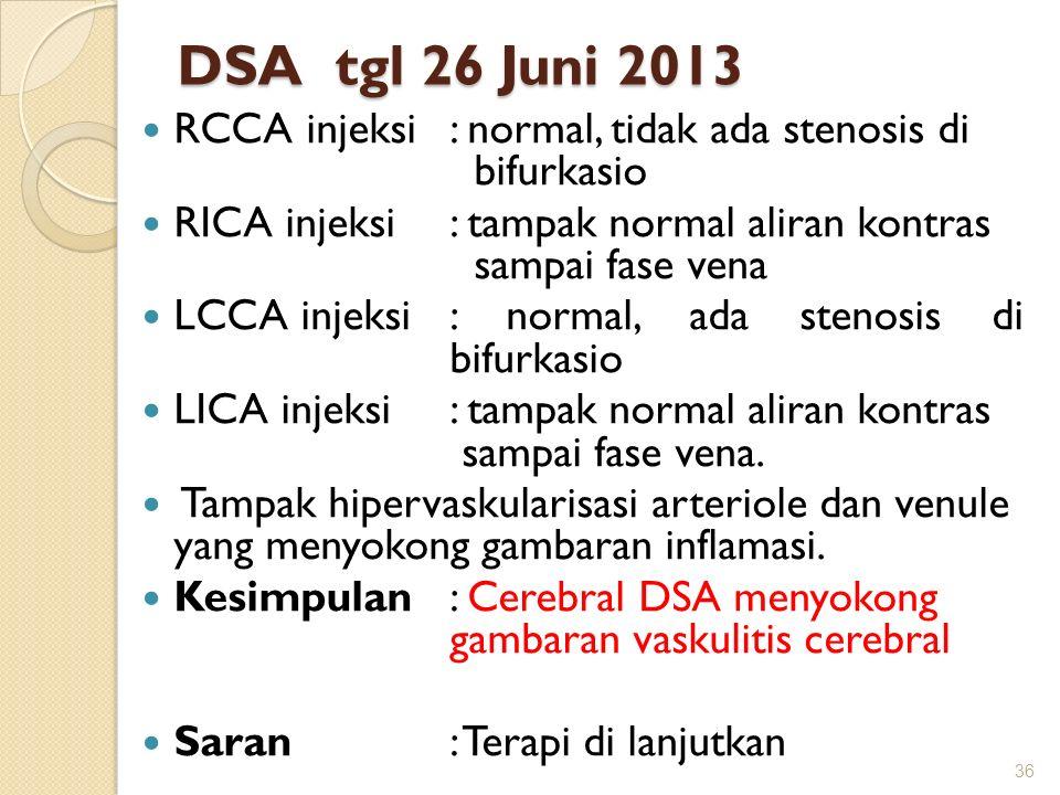 DSA tgl 26 Juni 2013 RCCA injeksi : normal, tidak ada stenosis di bifurkasio RICA injeksi: tampak normal aliran kontras sampai fase vena LCCA injeksi: normal, ada stenosis di bifurkasio LICA injeksi: tampak normal aliran kontras sampai fase vena.