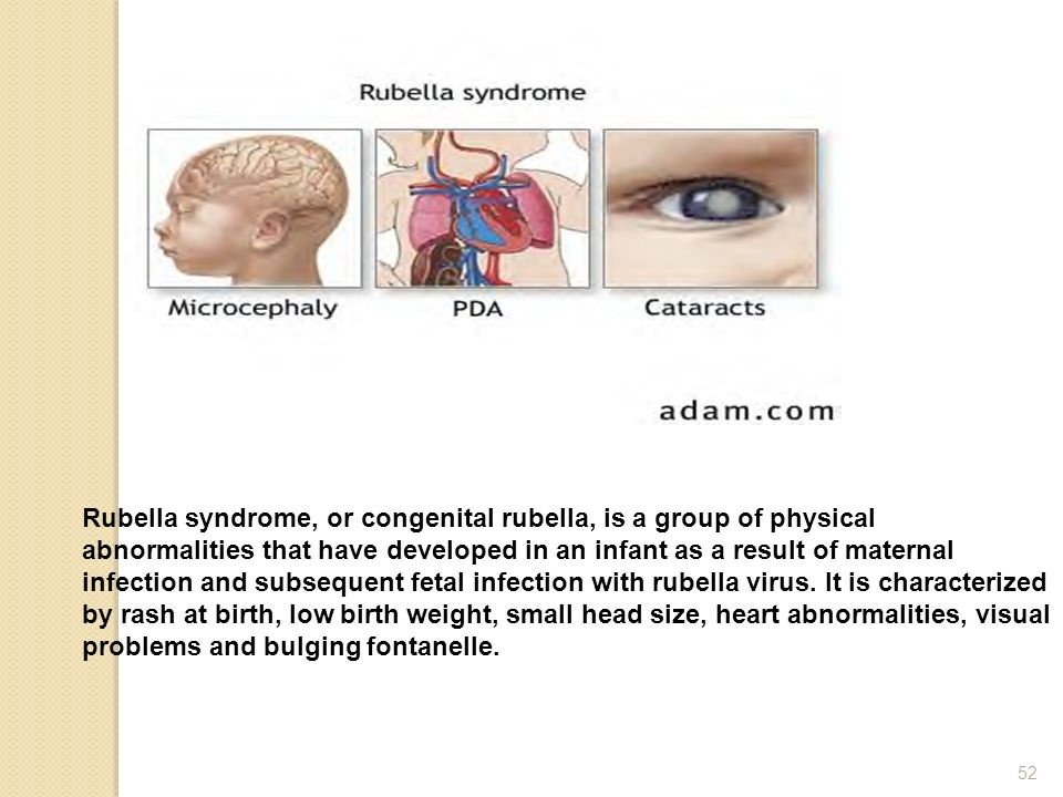 Rubella syndrome, or congenital rubella, is a group of physical abnormalities that have developed in an infant as a result of maternal infection and s