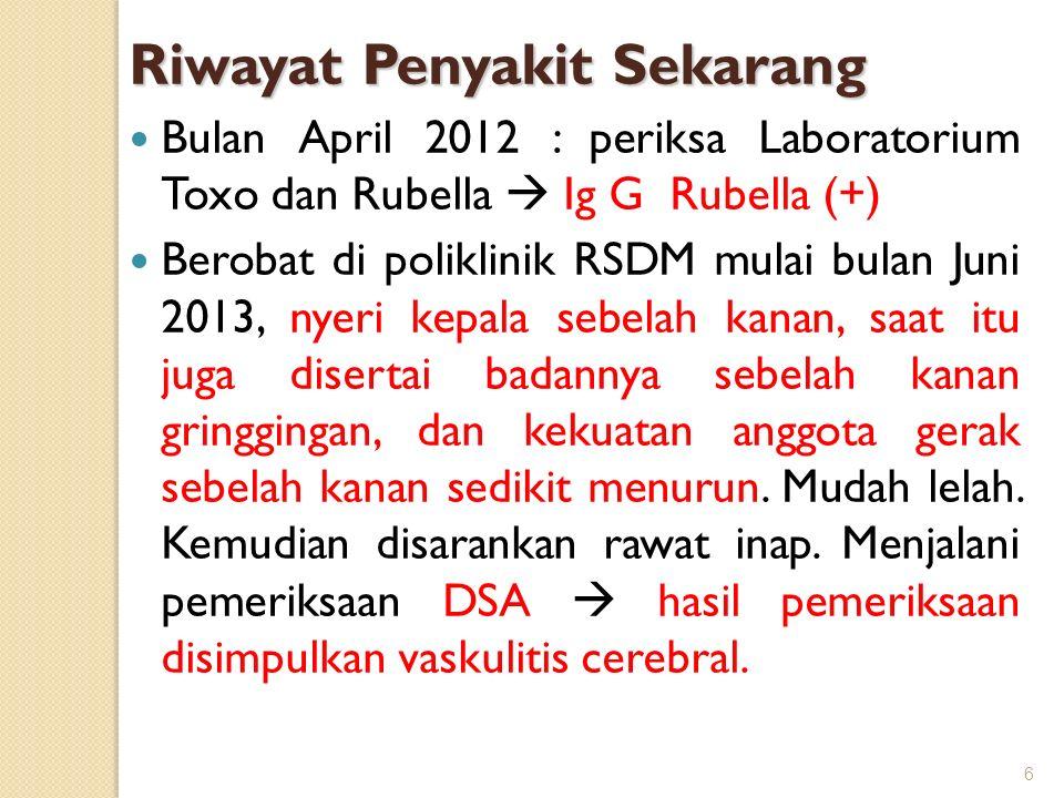 Riwayat Penyakit Sekarang Bulan April 2012 : periksa Laboratorium Toxo dan Rubella  Ig G Rubella (+) Berobat di poliklinik RSDM mulai bulan Juni 2013