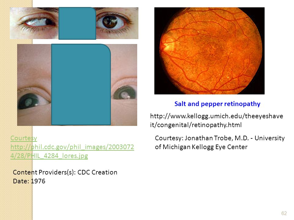 Salt and pepper retinopathy Content Providers(s): CDC Creation Date: 1976 Courtesy http://phil.cdc.gov/phil_images/2003072 4/28/PHIL_4284_lores.jpg ht
